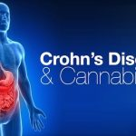How Medical Marijuana Helps with Crohn's Disease Symptoms